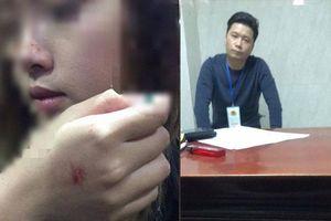 Cô gái bị sàm sỡ trong thang máy: 'Rất buồn và bất bình'