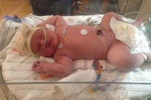Bé gái sơ sinh nặng 6,9 kg ở Mỹ