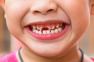 Chủ tịch Hội Răng Hàm Mặt Việt Nam: Sâu răng có thể gây biến chứng toàn thân!