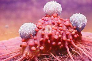 8 dấu hiệu 'tiền ung thư', cảnh báo cơ thể đang đi đến cực hạn