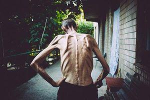 Nghịch lý bệnh lao