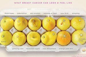 12 dấu hiệu 'tố cáo' bạn có thể bị ung thư vú