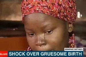 Người mẹ chết lặng khi con sinh ra chỉ có đầu, thân kẹt trong bụng suốt 24 tiếng