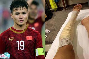 Sau chiến thắng U23 Thái Lan: Quang Hải lộ ảnh bó chân, Bùi Tiến Dũng nôn mửa khi rời sân