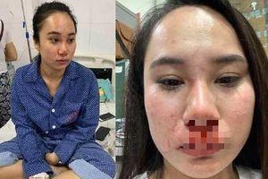 Luật sư của 'hot girl' bị lột váy hành hung: Nhóm người phụ nữ không đưa ra được bằng chứng ngoại tình