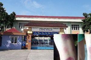 Tạm đình chỉ giảng dạy cô giáo đánh 22 học sinh dã man