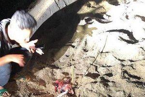 Bé trai 7 tuổi bị đàn chó tấn công đã tử vong