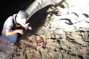 Bé trai bị gần chục con chó cắn dã man ở Hưng Yên đã tử vong