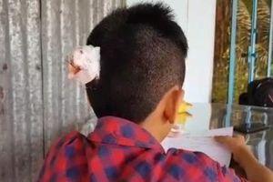 Lại xuất hiện học sinh lớp 7 bị bạn đánh chảy máu đầu