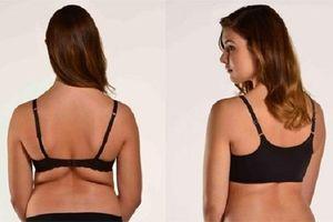 Mách bạn cách giảm mỡ vùng lưng