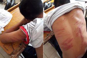 Bé trai bị bố đánh đến nhập viện: 'Em không dám la hét, chỉ ôm tay vào mặt lăn dưới nền đất'