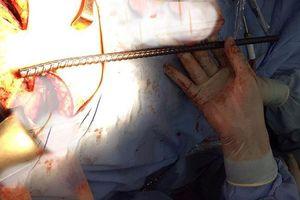 Cưa ngang thanh trụ móng cứu thợ bị sắt đâm xuyên lồng ngực