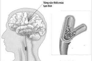 Bài thuốc hay trị chứng thiếu máu não