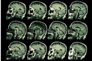 Truyền điện tới... não để phục hồi trí nhớ cho người