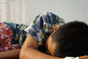 Người bố đánh con trai 79 vết thương có thể bị xử lý hình sự