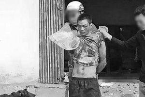 Lạng Sơn: Nghịch tử đuổi chém bố mẹ trọng thương