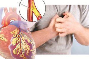 Cảnh báo: Trẻ hóa nguy cơ tắc động mạch vành