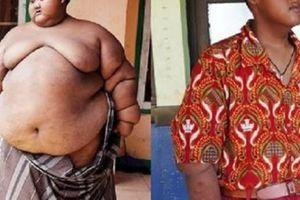 Bộ dạng mới gây sốc của cậu bé từng nặng gần 2 tạ, béo nhất thế giới