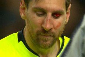 Messi có thể phải đeo mặt nạ đá trận lượt về với Man United