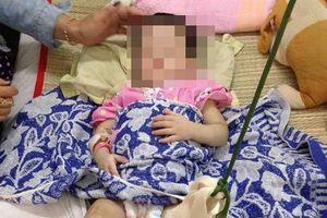 Khởi tố người phụ nữ đánh con nuôi gãy chân
