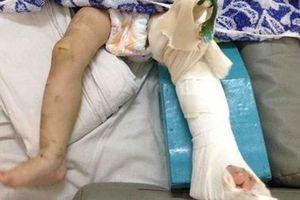Mẹ nuôi đánh gẫy chân bé một tuổi: Ba lần cho tiền