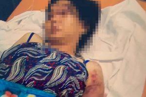 Vụ cô gái mang thai bị tra tấn khiến thai nhi tử vong: Xác định kẻ chủ mưu