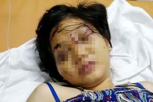 21 ngày sống trong 'địa ngục' của cô gái 9X bị tra tấn đến sẩy thai