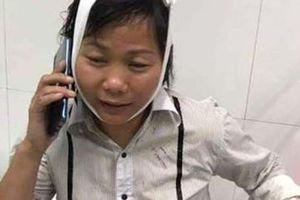 Nữ tài xế taxi bị 2 bảo vệ Bệnh viện đánh nhập viện