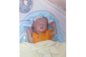 LD1949: Cháu bé bị não úng thủy rất cần sự giúp đỡ