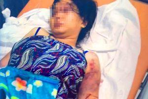 Vụ bà bầu 18 tuổi bị giam, tra tấn đến sẩy thai: Luật sư phân tích yếu tố pháp lý