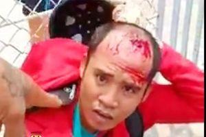 An Giang: Bắt giữ nam thanh niên dùng xiệc điện cướp tiệm vàng