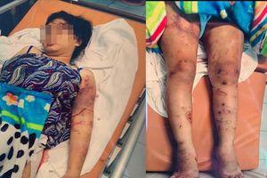 Cô gái 18 tuổi bị tra tấn sẩy thai ở TP HCM: Khởi tố, bắt tạm giam bị can