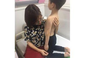 Hà Nội: Làm rõ nghi vấn học sinh lớp 1 bị mẹ kế bạo hành