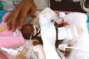 'Phép màu' y học: nuôi sống bé trai sinh non chỉ nặng 258 g
