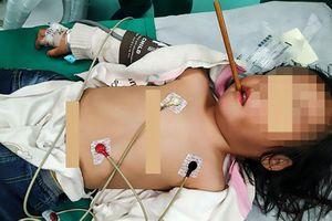 Đang chơi đùa, bé gái 3 tuổi bị đũa cắm vào họng, xuyên qua sọ 10 cm