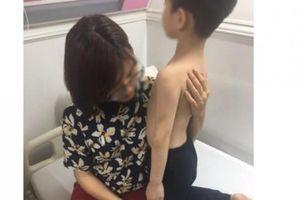 Hà Nội: Mẹ đẻ tố mẹ kế bạo hành con riêng của chồng