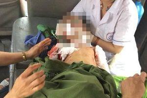 Sốc: Lại thêm bé trai 7 tuổi bị chó lai nhà nuôi cắn tử vong