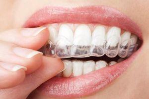 Để nụ cười xinh, học ngay những thói quen ngừa sâu răng từ nha sĩ