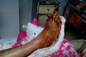 Quảng Nam: Nối thành công bàn chân bị máy cắt cỏ cứa gần như đứt lìa