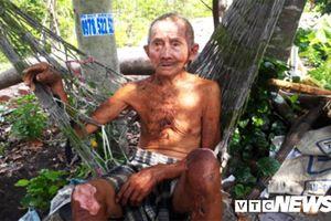 Xót xa cụ ông 90 tuổi bị bỏng nặng, một mình nuôi con trai khờ và đứa cháu tâm thần