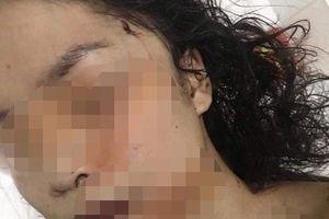 Bắc Ninh: Điều tra vụ cô gái 18 tuổi bị bạn rạch mặt khâu 60 mũi