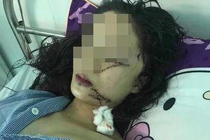 Cô gái 18 tuổi bị bạn rạch mặt, khâu 60 mũi do mâu thuẫn ở phòng trọ