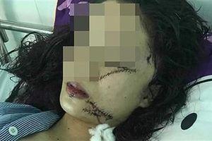 Cô gái bị rạch mặt, khâu 60 mũi: Vì mâu thuẫn nhỏ?