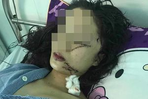 Nguyên nhân 2 thiếu nữ rạch mặt nhau kinh hoàng ở Bắc Ninh