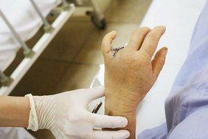 Cảnh báo thói quen có thể khiến bạn mất ngón tay khi đi ô tô