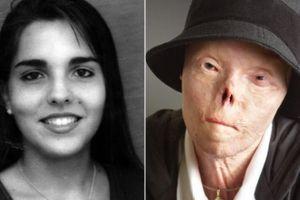 Cô gái bị hủy hoại gương mặt vì tài xế say xỉn qua đời ở tuổi 40