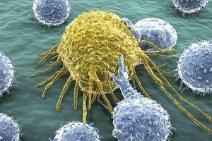 5 nguyên nhân gây ung thư bạn không ngờ tới