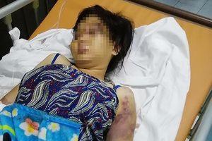 Bắt em gái nghi can cầm đầu vụ tra tấn cô gái ở Bình Chánh