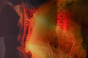 Thoát vị đĩa đệm: Nguyên nhân, triệu chứng và cách chữa bệnh phòng bại liệt
