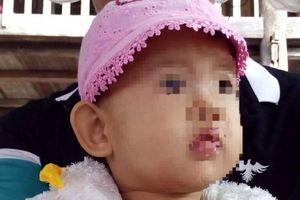 Bé gái 29 tháng tuổi tử vong ở bệnh viện, gia đình yêu cầu điều tra